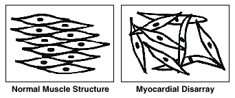 Myocardial Disarray